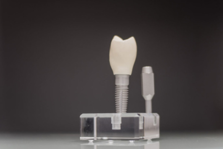 Zahnarzt Düren - Penner - Leistungen - Implantologie